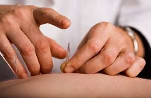 Tapping in acupuncture needle
